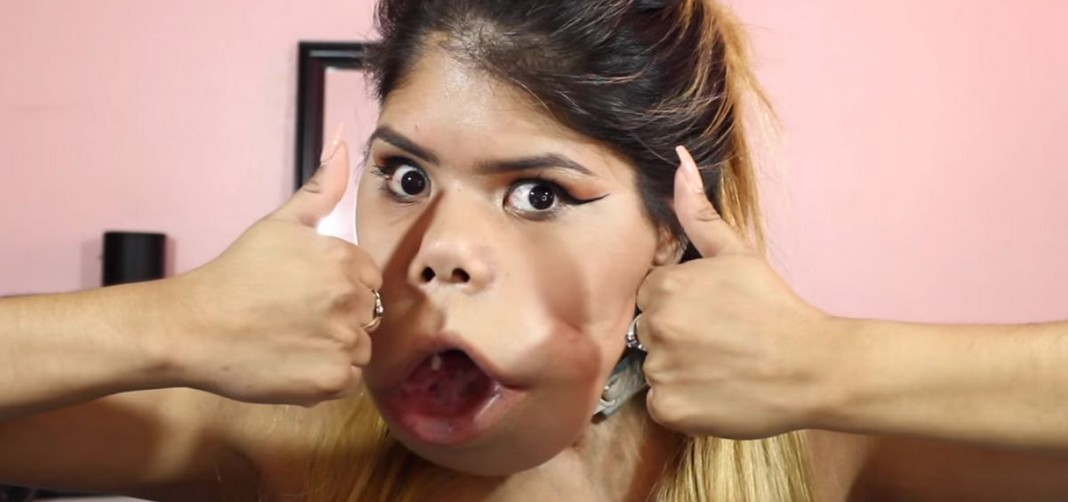 Découvrez Marimar Quiroa, la vloggeuse beauté qui est atteinte d'une tumeur du visage !